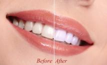 In-Office Teeth Whitening