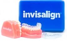 Invisalign® Invisible Orthodontics